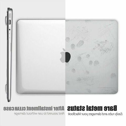 2020 Macbook 13 Case & Keyboard & Screen Protector A2179